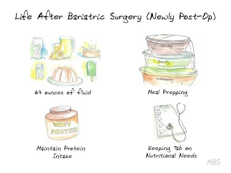 Weight Maintenance After Bariatric Surgery