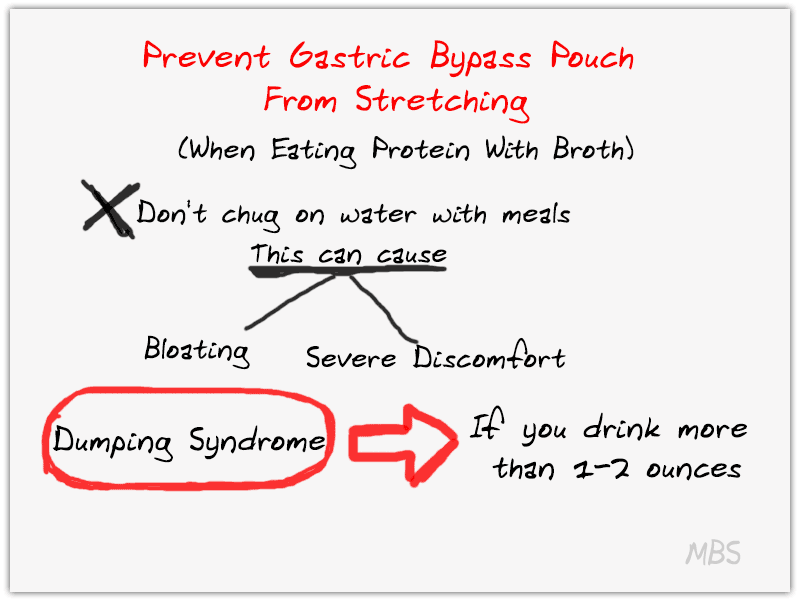 Protein And Liquids Together - Prevent Gastric Sleeve Pouch Stretching